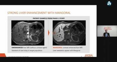Embedded thumbnail for Ascelia Pharma – Aktiedagen Stockholm 16 mars 2021